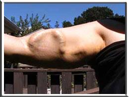 Kidney Arm